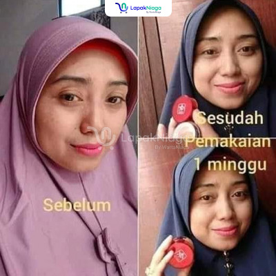 Red Jelly Skinbooster